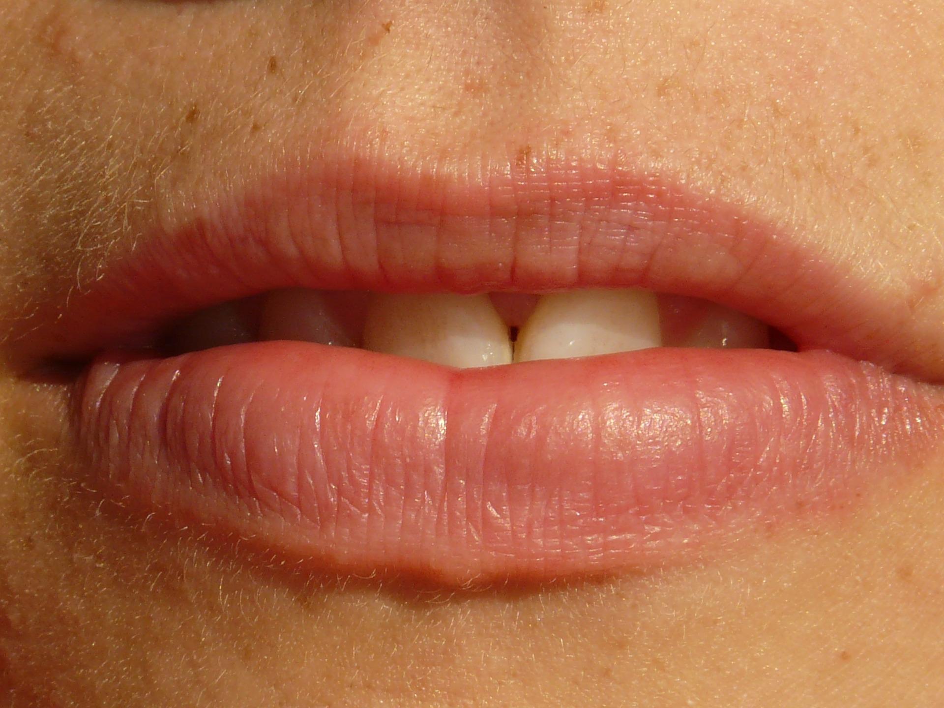 Pozor na nevyžiadané fúziky po dermatologickom ošetrení