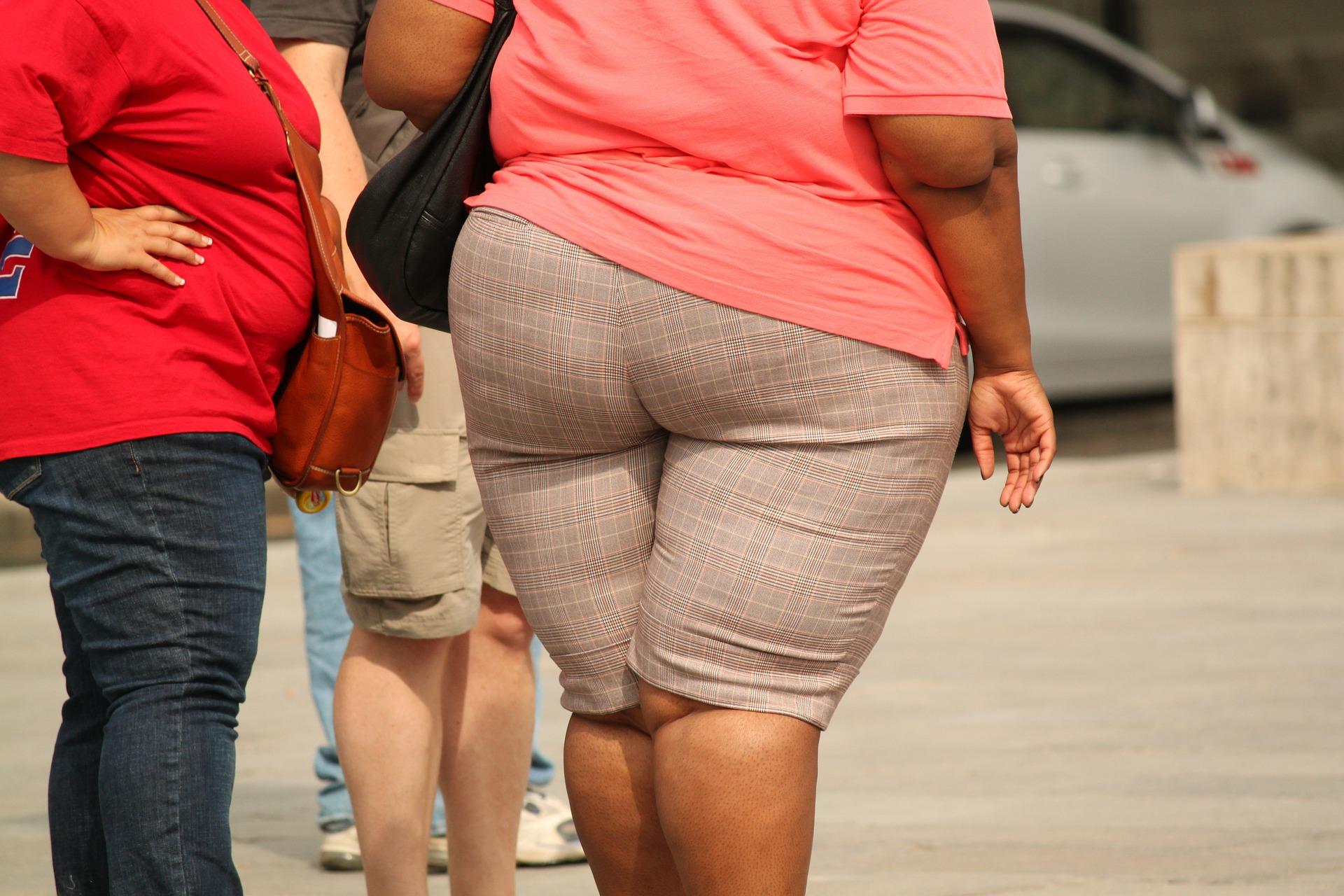 Obezita trápi veľa ľudí